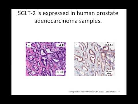 Original Research Proposal: Investigating the Role of SGLT2 in Altered Metabolism of Prostate Cancer