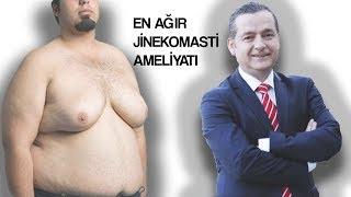 En Ağır Jinekomasti Ameliyatı |  Op.Dr. Fatih Dağdelen