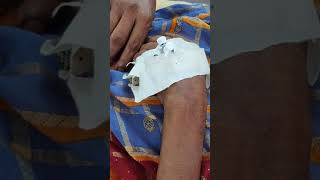Comment on size of IV cannula?? #for #ans #see #description