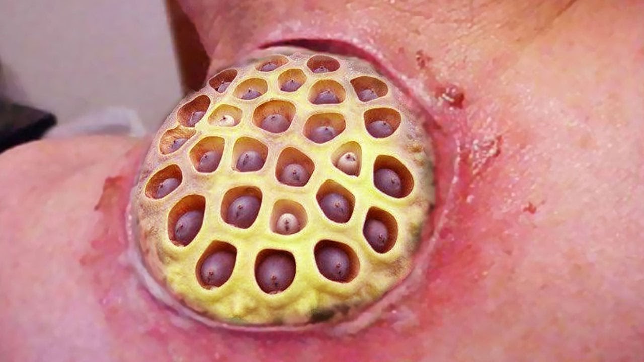 Lotus Pod Cyst Trypophobia Immersion Therapy Part Two Youtube