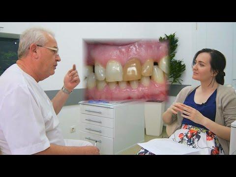 Коронка на зуб - сколько стоит коронка на зуб.