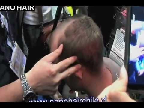 Nano Hair Chile Demostracion 02