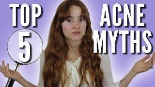 Top 5 Acne Myths