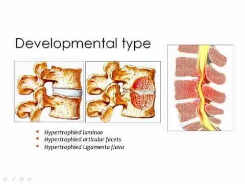 Spinal degenerative diseases Imaging   Prof  Dr  Mamdouh Mahfouz 720p