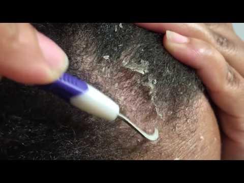 ASMR Dandruff Scratching and Picking + Edges + Big Flakes