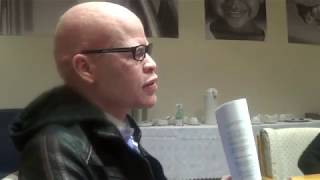 Albinism Activist Mpho Tjope on International Albinism Awareness Day