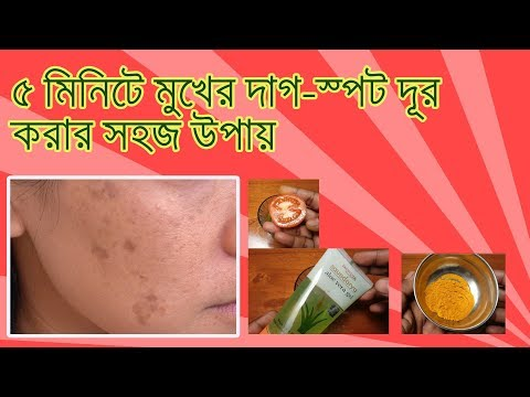 Dark Spots Removal In Bangla  ৫ মিনিটে মুখের দাগ স্পট দূর করার সহজ উপায়।