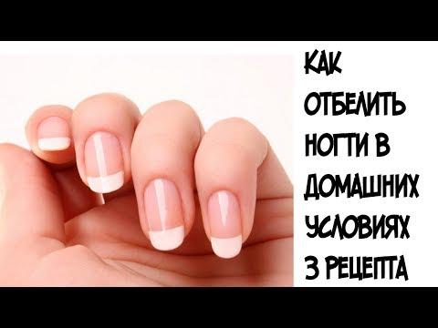 Как отбелить ногти в домашних условиях ///3 самые эффективные маски