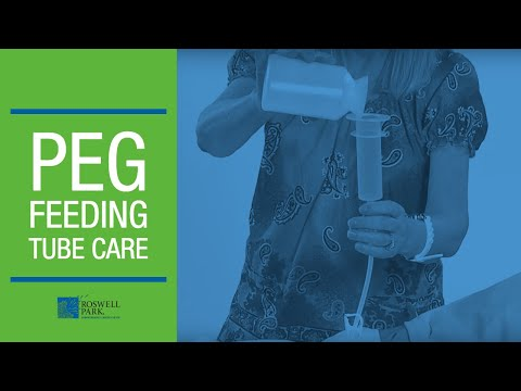 PEG Feeding Tube Care Instructions | Roswell Park Patient