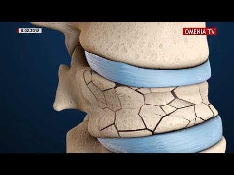 osteoporoza diagnostic de ce se creg articulațiile genunchiului