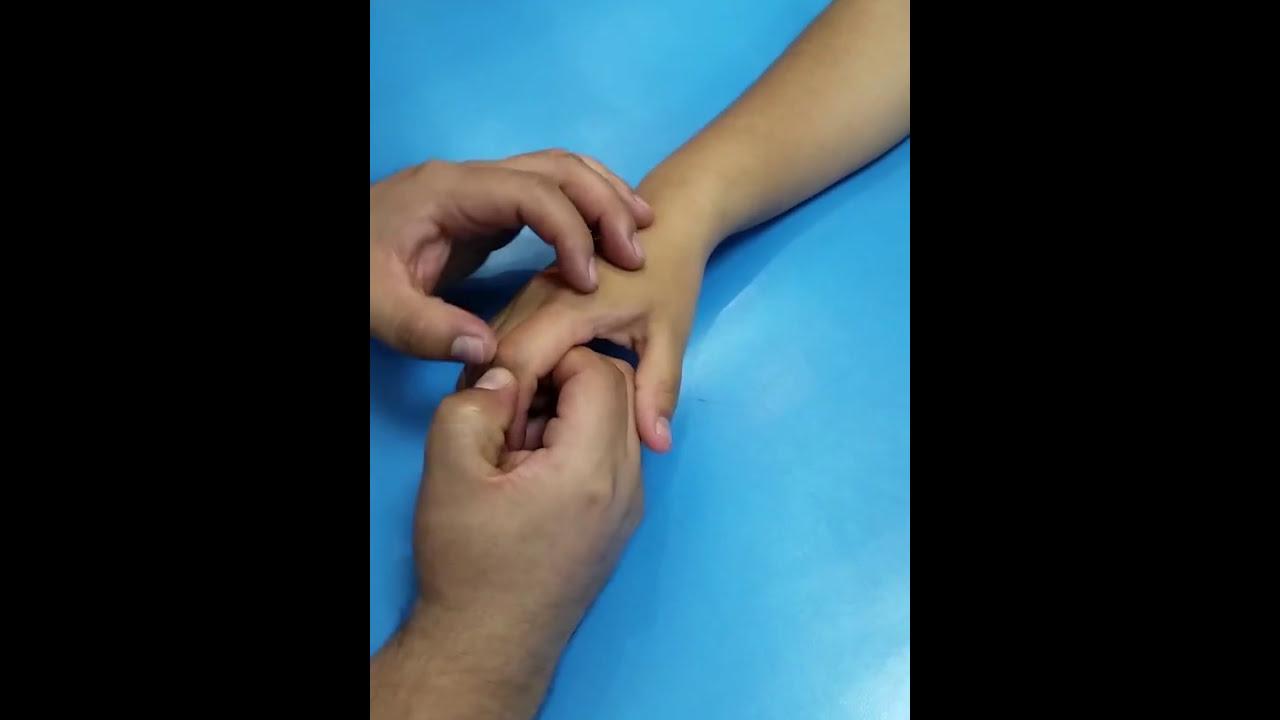 Anatomia superficies Óseas de la Mano ( palpacion) - YouTube