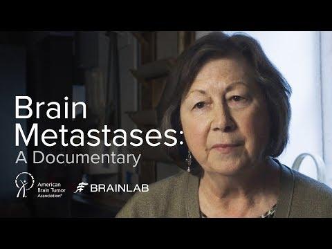 Trailer - Brain Metastases: A Documentary