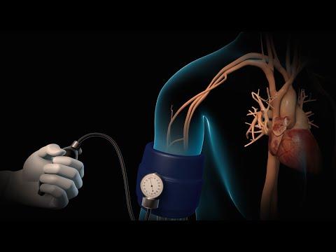 High Blood Pressure | Hypertension | Nucleus Health