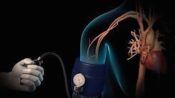 hqdefault - Hypertension Causes Diabetes