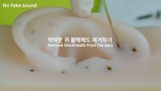 [No fake sound] 딱딱한 귀 블랙헤드 제거하기💉|Remove blackheads from the ears,ブラックヘッド 除去|블레어 Blair ブレア ASMR