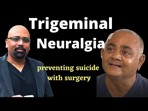 Trigeminal neuralgiaTrigeminal neuralgiais a face pain disorder characterized by sharp shooting pain.
