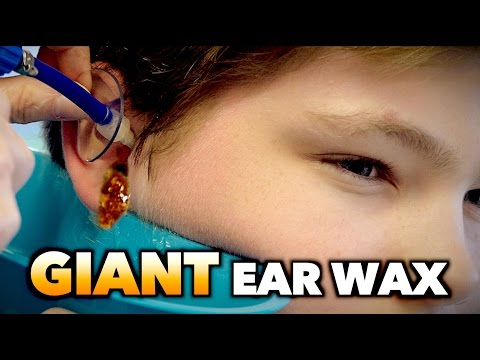 Thumbnail: GIANT EAR WAX REMOVAL! | Dr. Paul