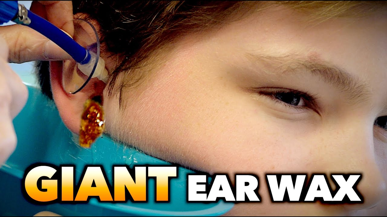 Giant Ear Wax Removal Dr Paul Youtube