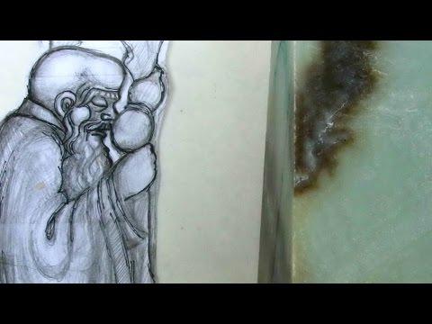 Нефрит - лечение болезни. Симптомы и профилактика