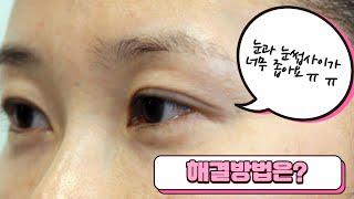 눈과 눈썹사이 좁은 케이스, 이마거상수술 하면 넓혀질 …