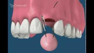 Подсадка мягких тканей (Обучающее видео для стоматологов)