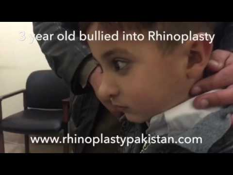 3 years old bullied into rhinoplasty