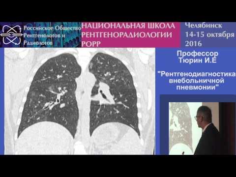 И.Е. Тюрин - Рентгенодиагностика внебольничной пневмонии