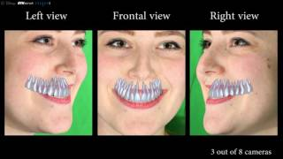 Model Based Teeth Reconstruction
