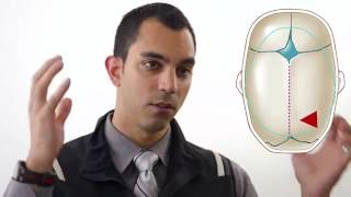 Navigating A Diagnosis of Craniosynostosis.