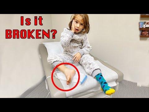 IS IT BROKEN?! Sprain Or Break?
