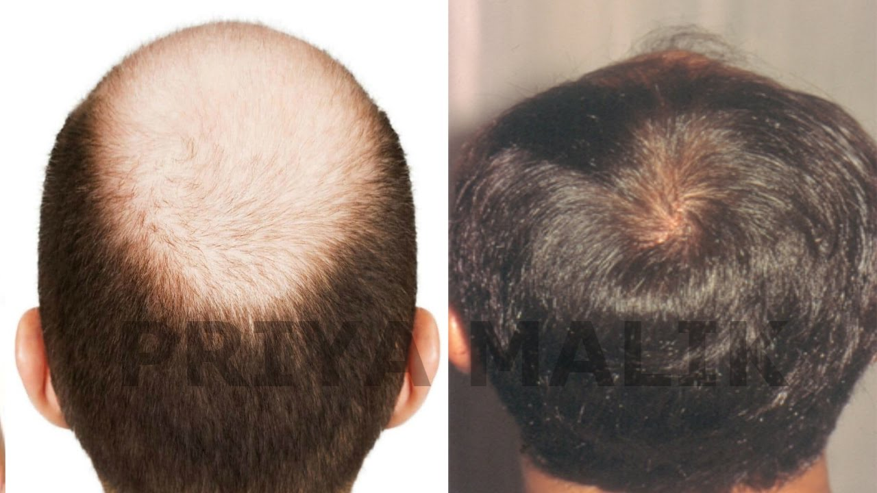 Is Your Hair Loss Actually Alopecia