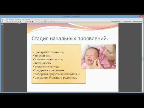 Современные способы лечения рахита у детей.