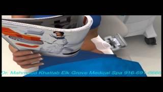 Coolsculpting Dr. Mahmoud Khattab Elk Grove Medical Spa