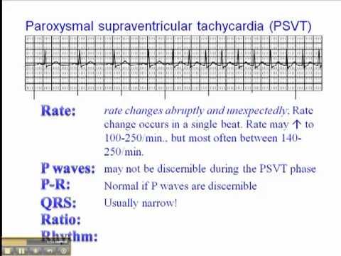 Ecg Paroxysmal Supraventricular Tachycardia Psvt Youtube
