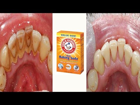 How to Remove Plaque & Tartar from Teeth with Baking Soda at Home
