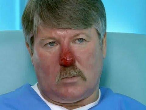 Лечение красного носа (розацеа)