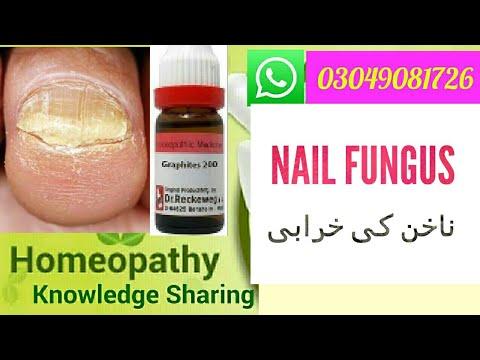 toenail fungus ! Homeopathic Medicine for toenail fungus cure ?