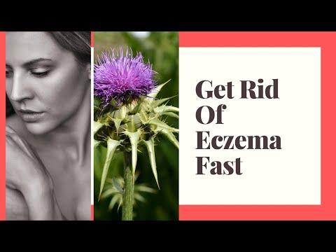 How to treat eczema naturally fast | Eczema remedies