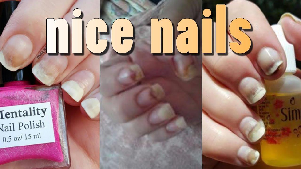 This Nail Polish Is Ing Up Nails Bad
