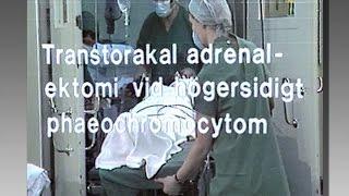 Transtorkal adrenalinektomi vid högersidigt phaeochromocymtom - Kirurgi