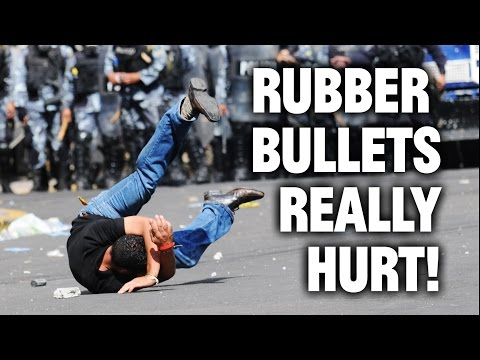 Ferguson Fallout: The Pain of Rubber Bullets