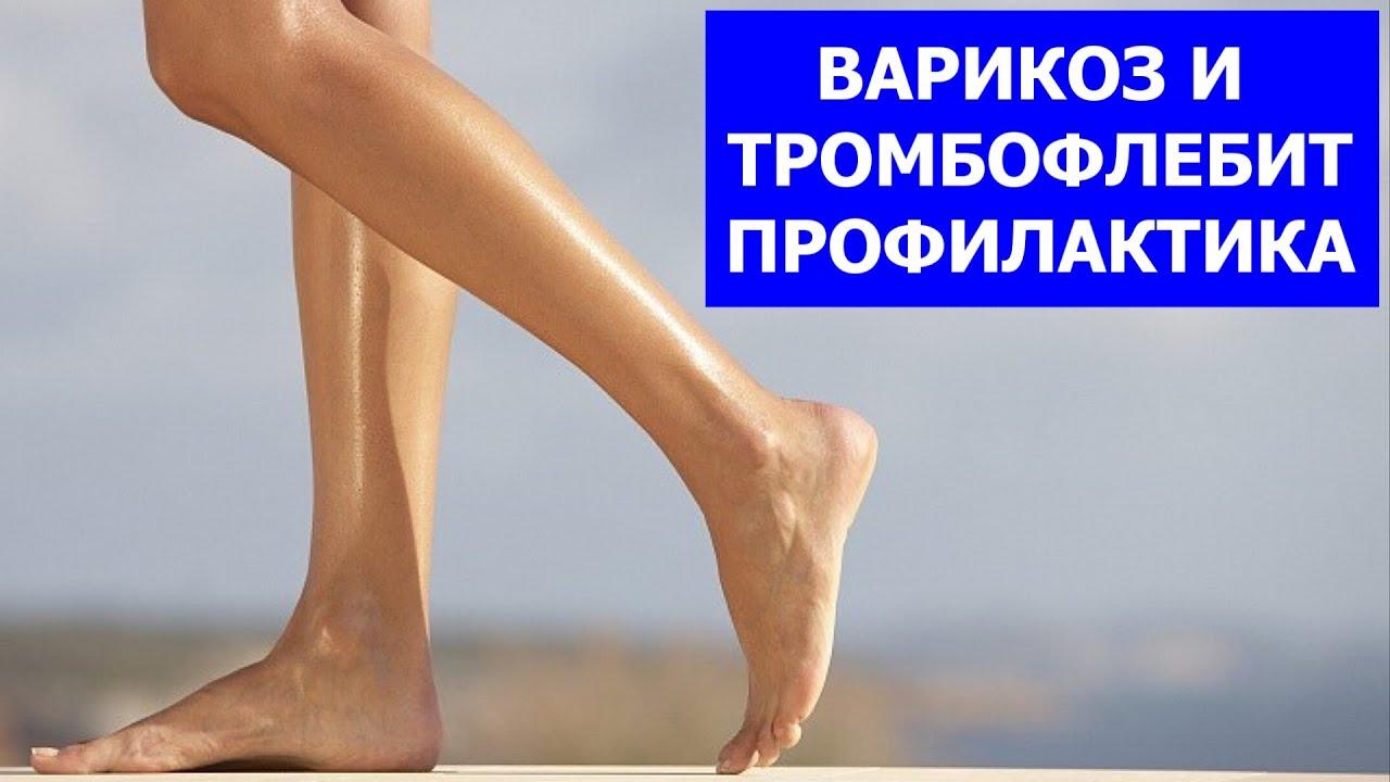 Как Сохранить Здоровье и Красоту Ног. Профилактика Варикоза и Тромбофлебита