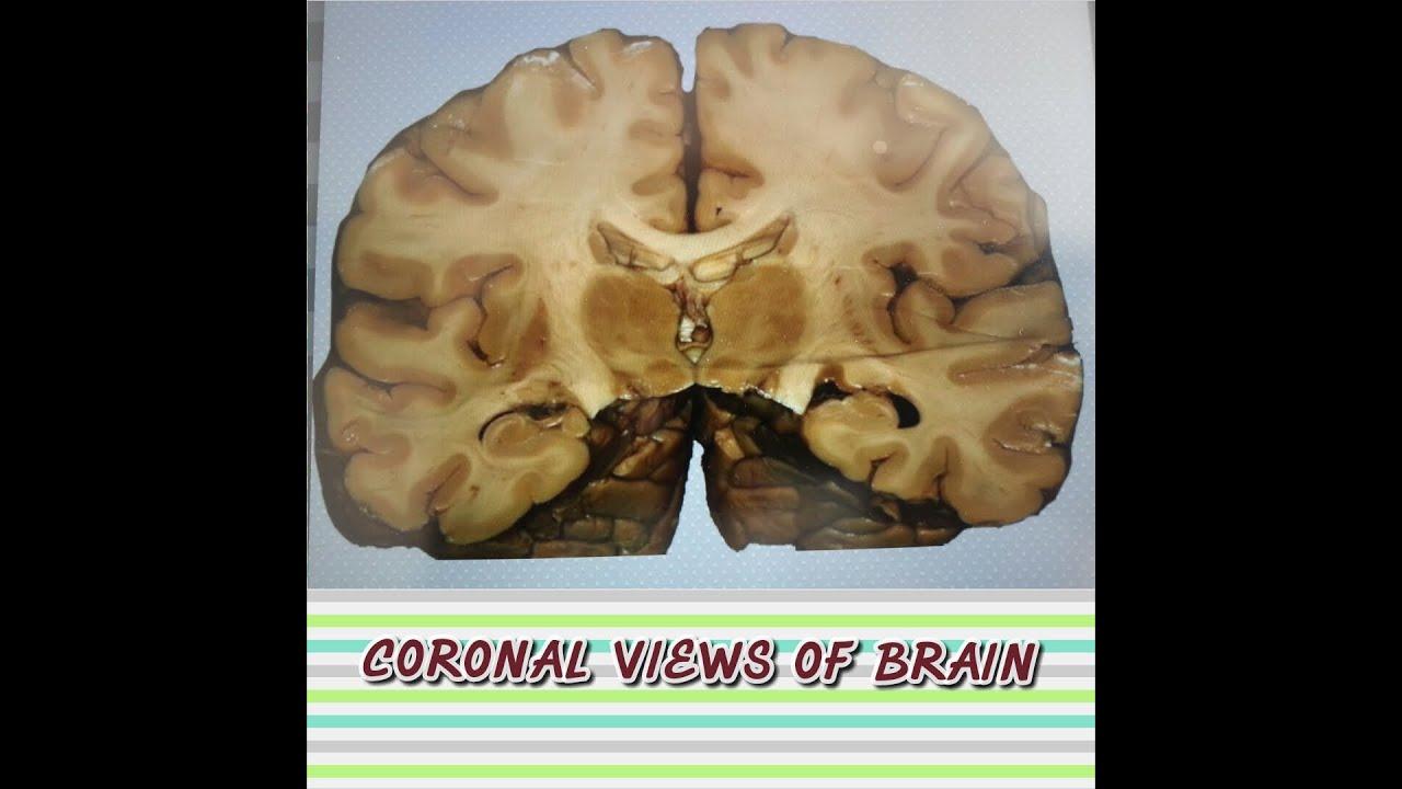 Brain Anatomy (Neuroanatomy) - Coronal Sectional Views - YouTube