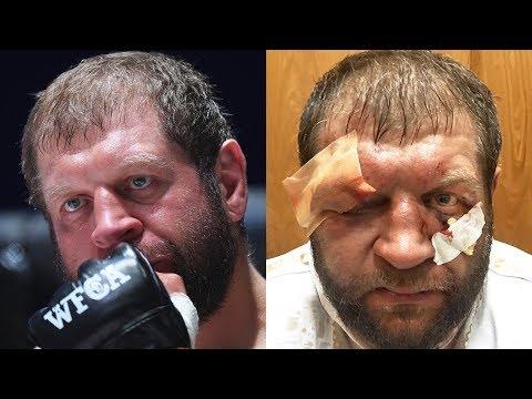 Самый тяжелый бой Емельяненко / Александр до и после боя против Тони Джонсона