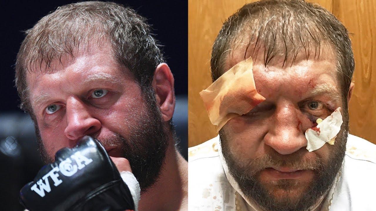 Самый тяжелый бой Александра Емельяненко / Увезли на скорой после боя против Тони Джонсона