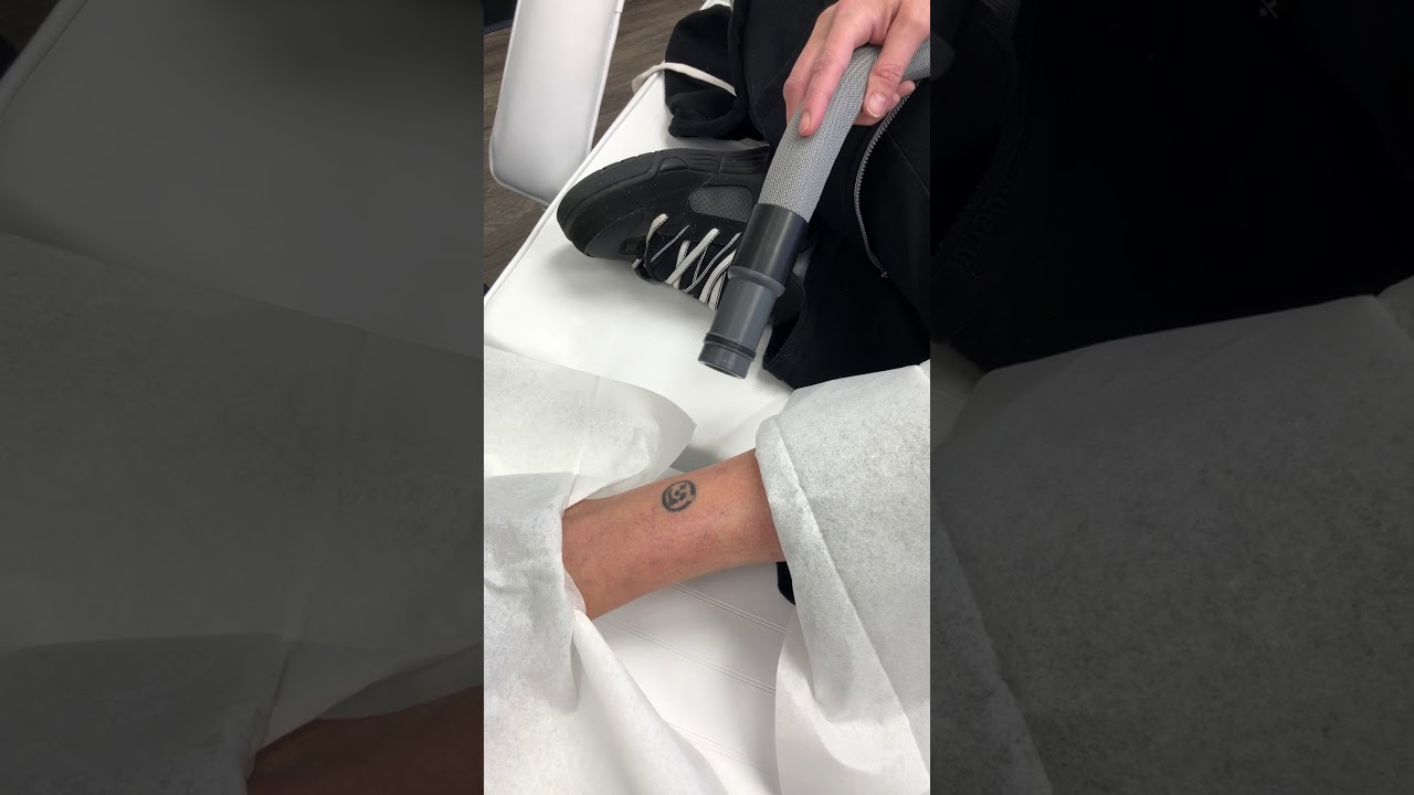 Above Ankle Tattoo Removal by Vanish Laser Aesthetics - Longview ...