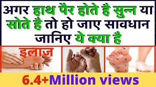 हाथ/पैर होते है सुन्न या सोते है तो हो जाए सावधान जानिए ये क्या है/इलाज-Numbness in Hands and Feet