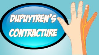 dupuytren s contracture hand disorder called dupuytren s contracture