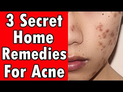 powerful-home-remedies-for-acne---3-secret-treatments-revealed