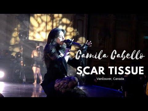 Scar Tissue (Unreleased) - Camila Cabello (Vancouver, Canada)